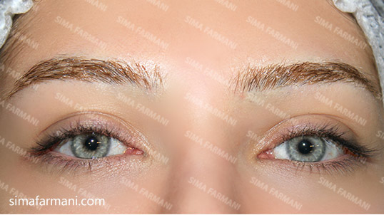 micropigmentation_eyelin_before