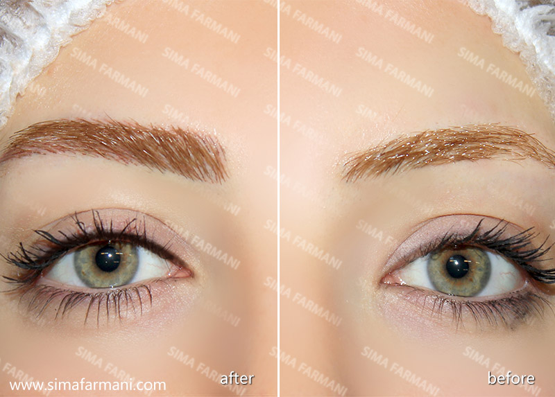[تصویر:  after-before_eyes_liner-2_3.jpg]