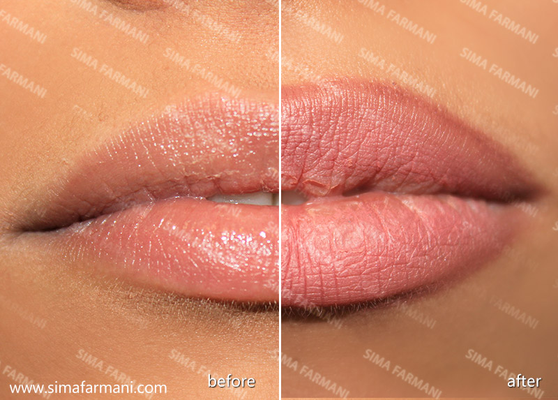 after-before_hashor_lips-1_3