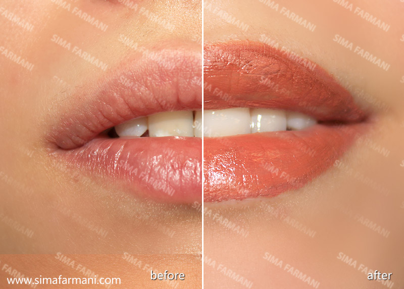 after-before_hashor_lips-2_3