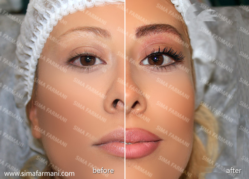 after-before_hashor_lips-3_3